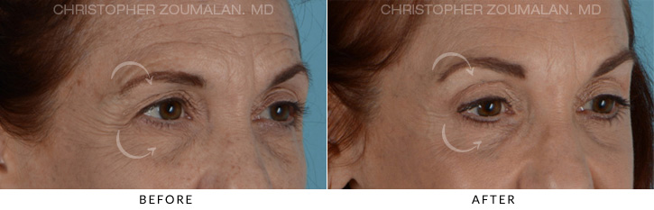 Endoscopic Brow Lift Before & After Photo - Patient Seeing Side - Patient 2C