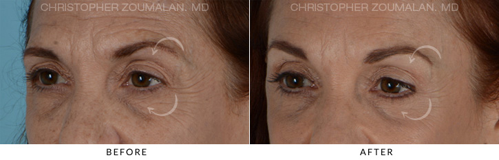 Endoscopic Brow Lift Before & After Photo - Patient Seeing Side - Patient 2D