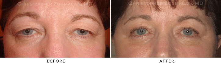 Endoscopic Brow Lift Before & After Photo -  - Patient 32