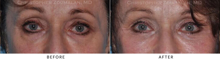 Endoscopic Brow Lift Before & After Photo -  - Patient 31