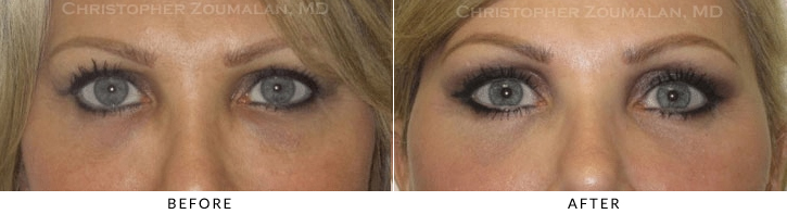Endoscopic Brow Lift Before & After Photo -  - Patient 33
