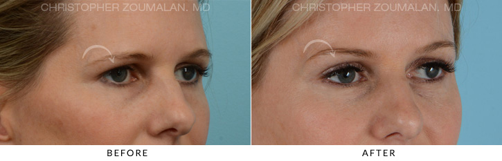 Endoscopic Brow Lift Before & After Photo - Patient Seeing Side - Patient 3A