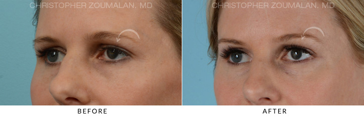 Endoscopic Brow Lift Before & After Photo - Patient Seeing Side - Patient 3B