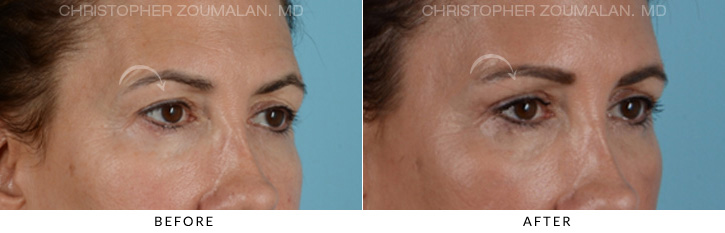 Endoscopic Brow Lift Before & After Photo - Patient Seeing Side - Patient 4A