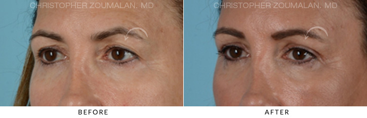 Endoscopic Brow Lift Before & After Photo - Patient Seeing Side - Patient 4B