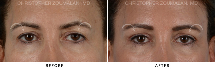Endoscopic Brow Lift Before & After Photo - Patient Seeing Straight - Patient 4C