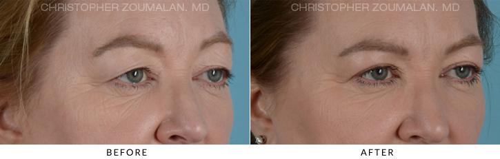 Endoscopic brow lIft Patient 5