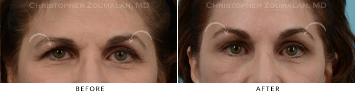 Endoscopic Brow Lift Before & After Photo -  - Patient 5