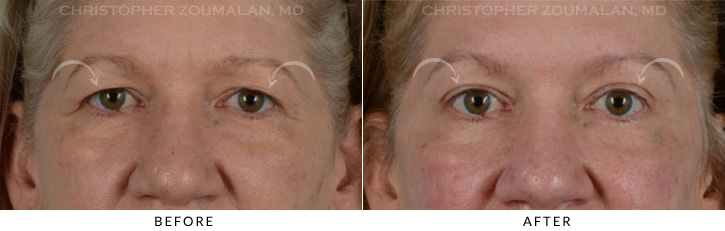 Endoscopic Brow Lift Before & After Photo - Patient Seeing Straight - Patient 6A