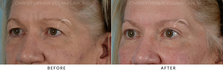 Endoscopic Brow Lift Before & After Photo - Patient Seeing Side - Patient 6B