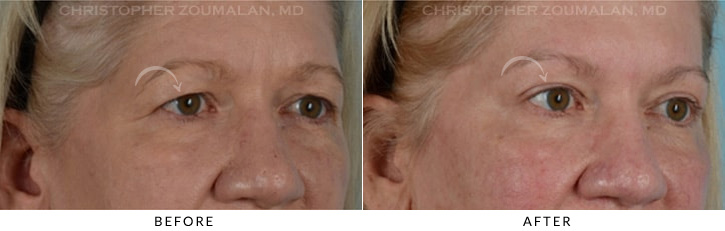 Endoscopic Brow Lift Before & After Photo - Patient Seeing Side - Patient 6C