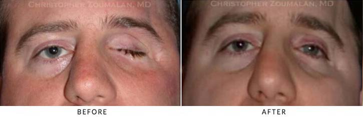 Eye Socket Orbital Surgery Before & After Photo -  - Patient 1