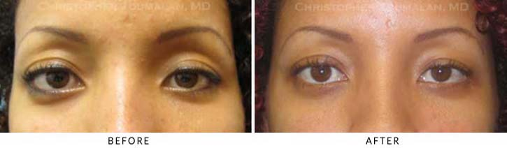 Eye Socket Orbital Surgery Before & After Photo -  - Patient 2A