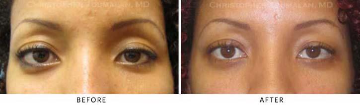 Eye Socket Patient 2