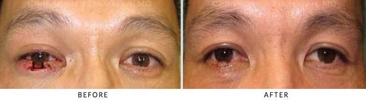 Eyelid Trauma Patient 1