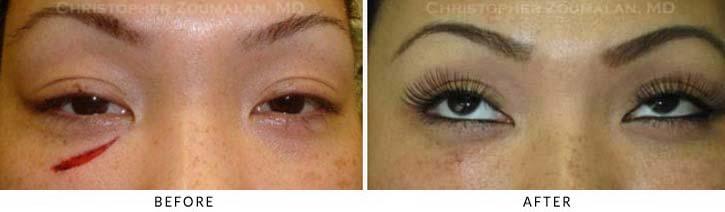 Eyelid Trauma Patient 2