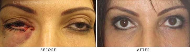 Eyelid Trauma Patient 3