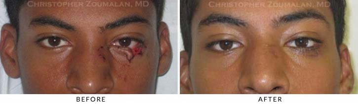 Eyelid Trauma Patient 4
