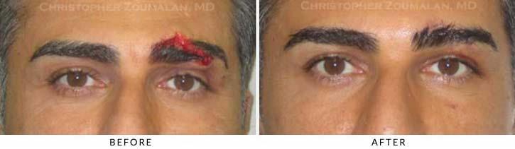Eyelid Trauma Patient 5