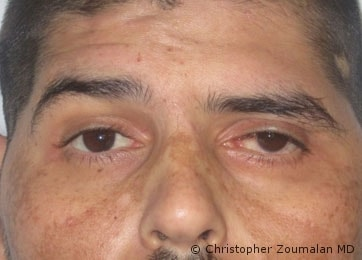 Left sided facial nerve palsy, Note the inability to raise the left brow, He also has a red and painful left eye due to his inability to close his eyelids - male patient before and after picture