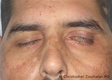 Upon closing his eyelids, he has an inability to properly close his left eyelids. As a result, he has exposure of his left eye - male patient before and after picture