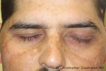 Placement of gold weight in the left upper eyelid and left lower lid canthoplasty - male patient before and after picture