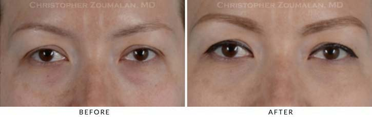 Fillers to treat lower eyelid hollowing Before & After Photo - Patient Seeing Straight - Patient 9A
