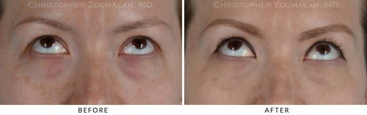 Fillers to treat lower eyelid hollowing Before & After Photo - Patient Seeing Up - Patient 9B
