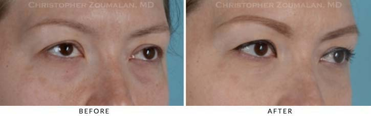 Fillers to treat lower eyelid hollowing Before & After Photo - Patient Seeing Side - Patient 9C
