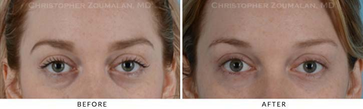 Fillers to treat lower eyelid hollowing Before & After Photo - Patient Seeing Straight - Patient 10A