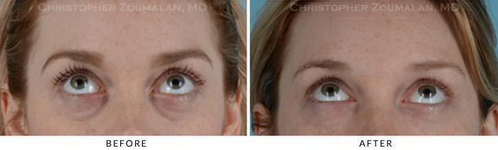 Fillers to treat lower eyelid hollowing Before & After Photo - Patient Seeing Up - Patient 10B