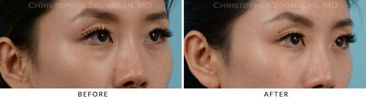 Fillers to treat lower eyelid hollowing Before & After Photo - Patient Seeing Side - Patient 11A
