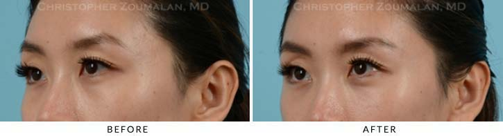 Fillers to treat lower eyelid hollowing Before & After Photo - Patient Seeing Side - Patient 11B