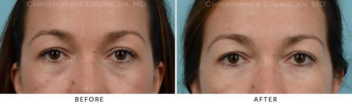 Fillers to treat lower eyelid hollowing Before & After Photo - Patient Seeing Straight - Patient 12