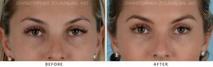 Fillers Lower Patient 2