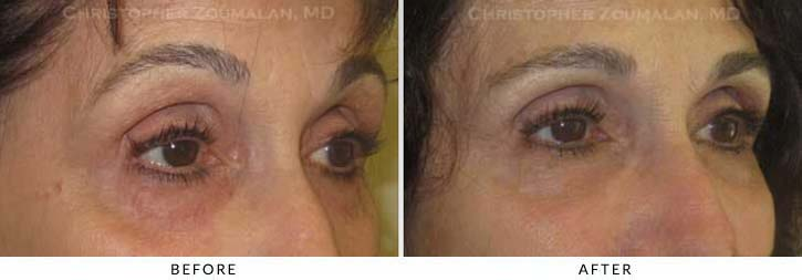 Fillers to treat lower eyelid hollowing Before & After Photo - Patient Seeing Side - Patient 37