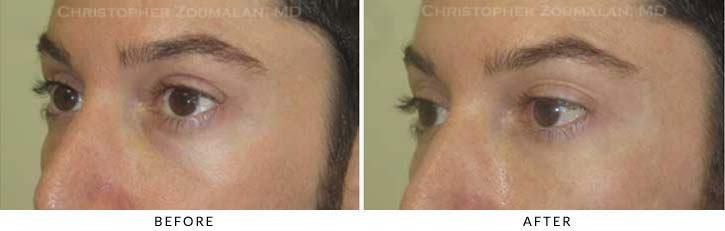 Fillers to treat lower eyelid hollowing Before & After Photo - Patient Seeing Side - Patient 38