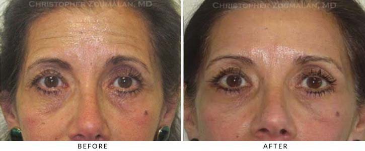 Fillers to treat lower eyelid hollowing Before & After Photo - Patient Seeing Straight - Patient 39