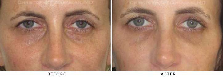 Fillers to treat lower eyelid hollowing Before & After Photo - Patient Seeing Straight - Patient 40