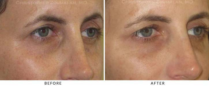 Fillers to treat lower eyelid hollowing Before & After Photo - Patient Seeing Side - Patient 41