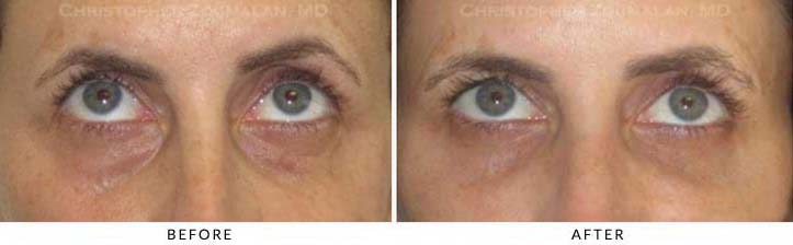 Fillers to treat lower eyelid hollowing Before & After Photo - Patient Seeing Up - Patient 42
