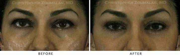 Fillers to treat lower eyelid hollowing Before & After Photo - Patient Seeing Straight - Patient 43