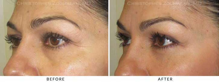 Fillers to treat lower eyelid hollowing Before & After Photo - Patient Seeing Side - Patient 44