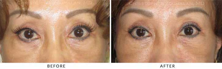 Fillers to treat lower eyelid hollowing Before & After Photo - Patient Seeing Straight - Patient 45