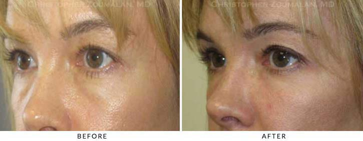 Fillers to treat lower eyelid hollowing Before & After Photo - Patient Seeing Side - Patient 46