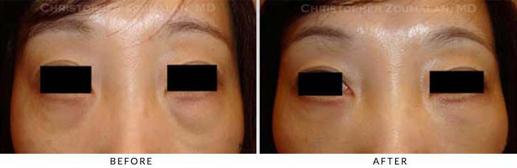 Fillers to treat lower eyelid hollowing Before & After Photo - Patient Seeing Straight - Patient 47