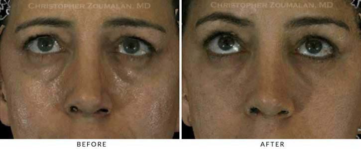 Fillers to treat lower eyelid hollowing Before & After Photo - Patient Seeing Up - Patient 48