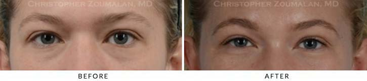 Fillers to treat lower eyelid hollowing Before & After Photo - Patient Seeing Straight - Patient 7A