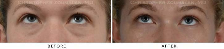 Fillers to treat lower eyelid hollowing Before & After Photo - Patient Seeing Up - Patient 7B