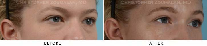 Fillers to treat lower eyelid hollowing Before & After Photo - Patient Seeing Side - Patient 7C